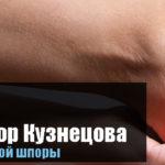 Аппликатор Кузнецова от шпор на пятках в домашних условиях