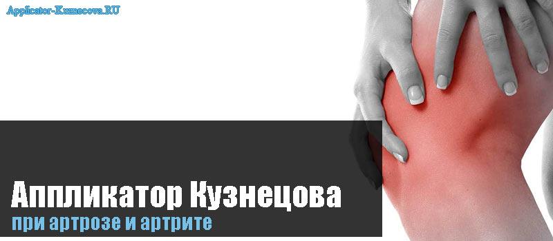 Аппликатор Кузнецова при артрозе и артрите