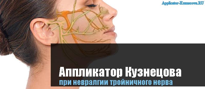Аппликатор Кузнецова при невралгии тройничного нерва