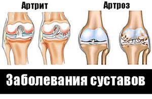 Артрит и артроз Общий корень в названии этих заболеваний указывает на определённую схожесть этих двух недугов. Да, оба заболевания связаны с поражением суставов