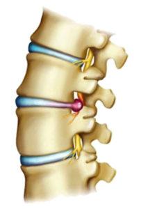 Грыжа шейного отдела позвоночника является финальной стадией запущенной формы шейного остеохондроза.