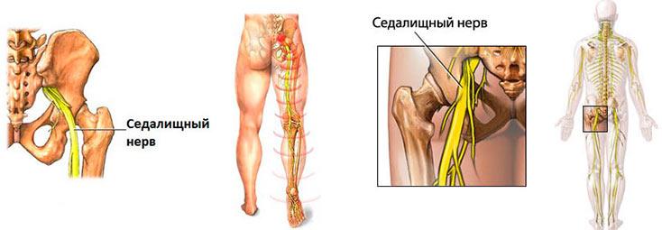 """Защемление седалищного нерва - это так называемый """"ишиас"""", при котором седалищный нерв воспаляется, что приводит к периодическим болям в области бедра и поясницы."""