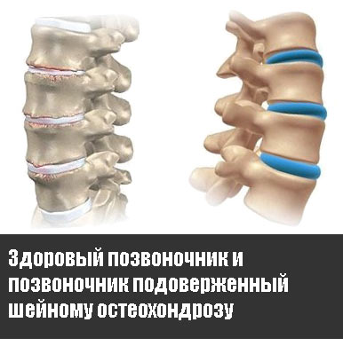 Здоровый позвоночник и позвоночник подоверженный шейному остеохондрозу