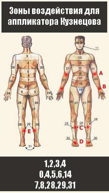 При инсульте аппликатор Кузнецова необходимо применять симметрично. Зоны 1,2,3,4,0,4,5,6,14,7,8,28,29,31