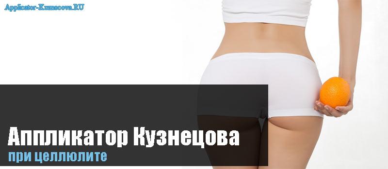 Аппликатор Кузнецова при целлюлите
