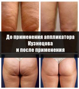 Аппликатор Кузнецова при целлюлите, фото до и после