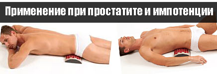 Как использовать аппликатор Кузнецова при лечении простатита