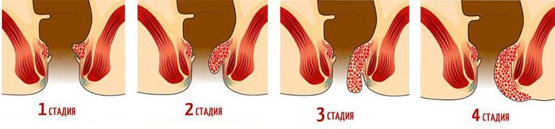 Геморрой - это процесс, при котором происходит воспаление прямой кишки, стадии геморроя