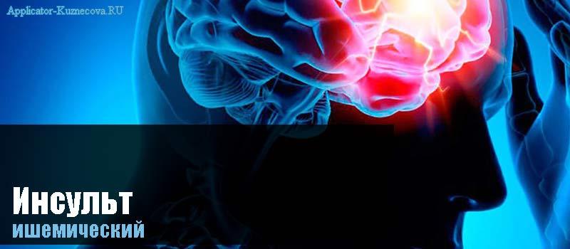 Ишемический инсульт головного мозга признаки
