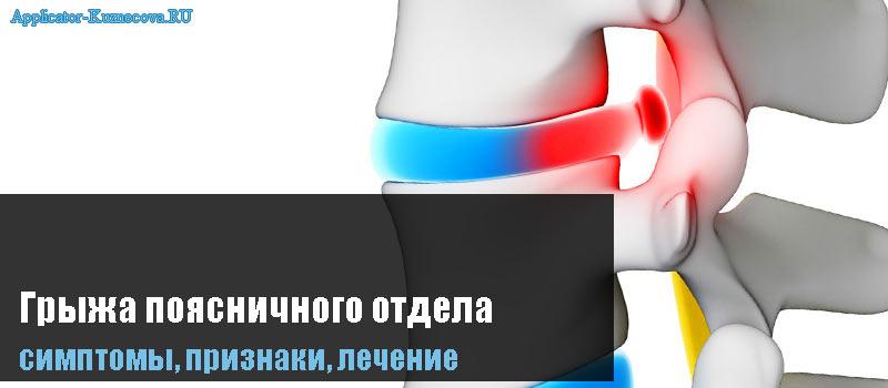 Лечение грыжи пояснично крестцового отдела без операции
