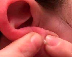 О чём говорят прыщи на ушах