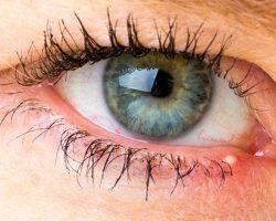 Как избавиться от прыщей в области глаз