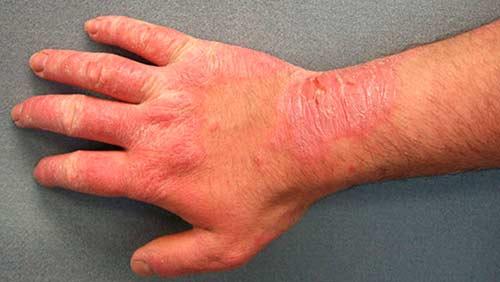 Экзематозный дерматит на руке