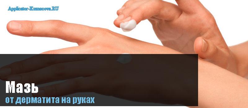 Дерматит на руках, лечение у взрослых, мазь