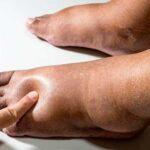 Отёк ног - фотография №2