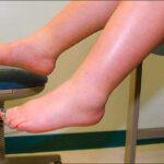 Отёк ног - фотография №3